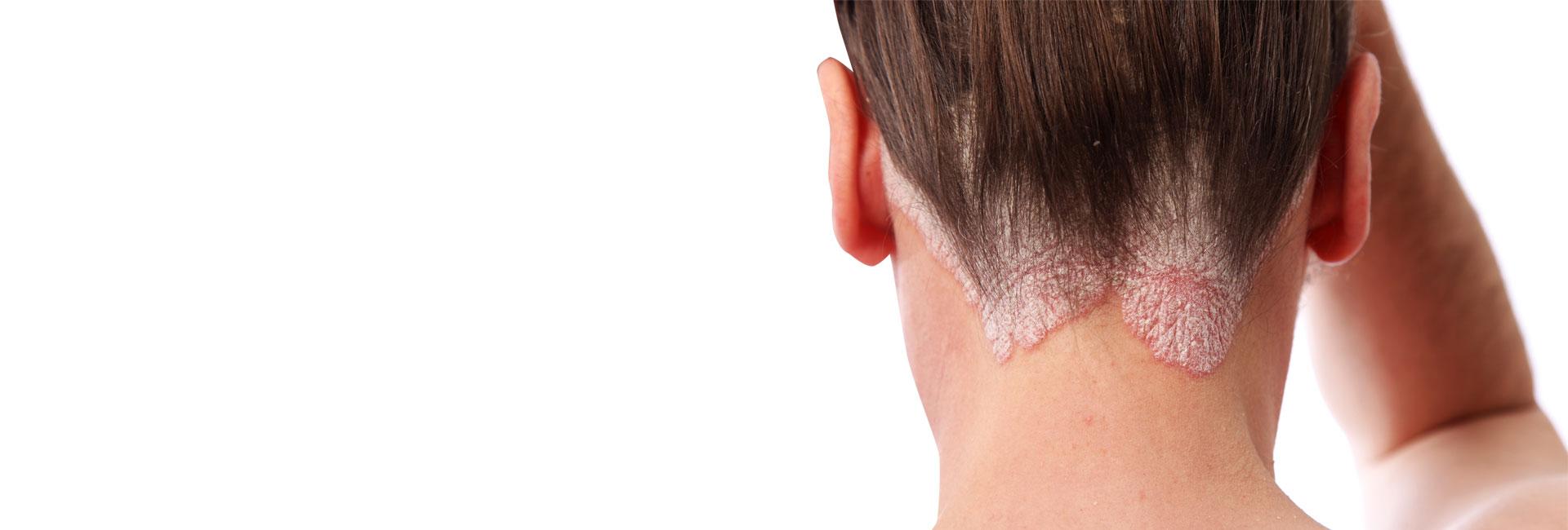 Innovative Dermatology - Havertown Dermatologist