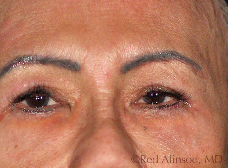 Pelleve RF Wrinkle Reduction System