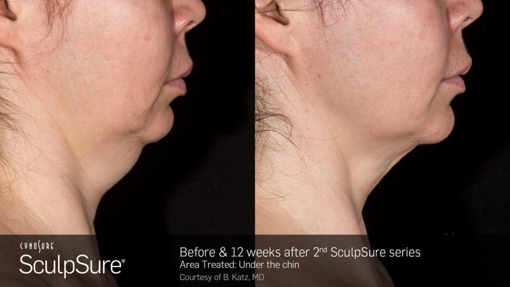 Sculpsure - Havertown Dermatologist
